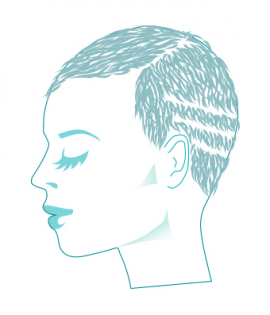Alopecia Traction